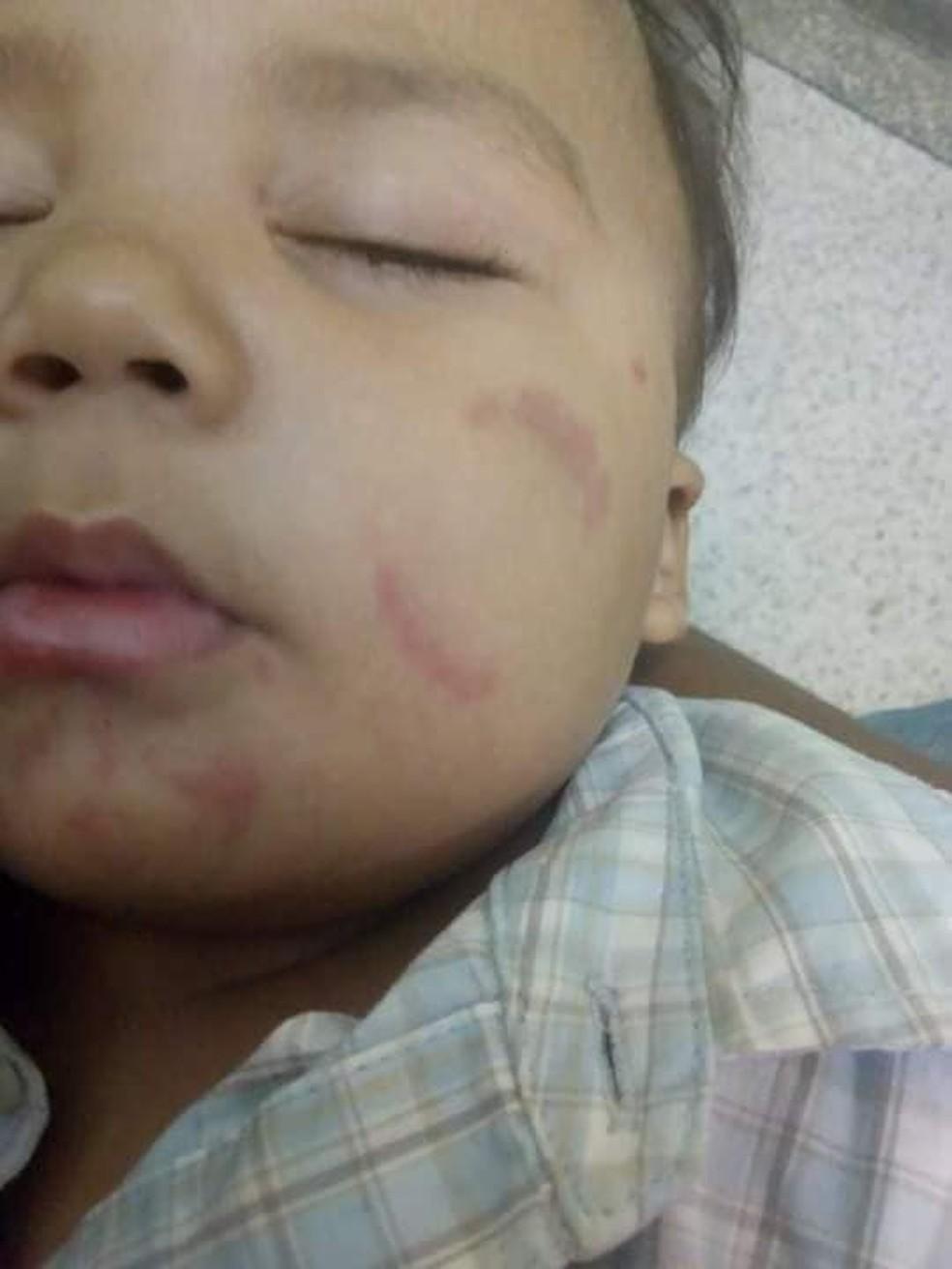 Caso aconteceu em uma creche de São Vicente, SP — Foto: Arquivo Pessoal