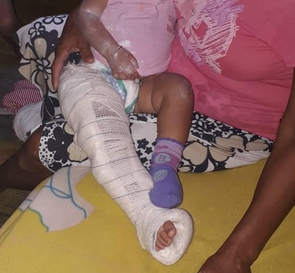 Criança também foi queimada com cigarro e arranhada supostamente pela própria mãe — Foto: Divulgação