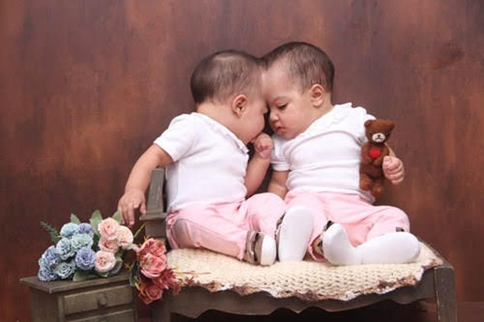 As gêmeas Mel e Lis foram separadas depois de quase 11 meses, em cirurgia inédita no DF  — Foto: Foto: Luci Vânia