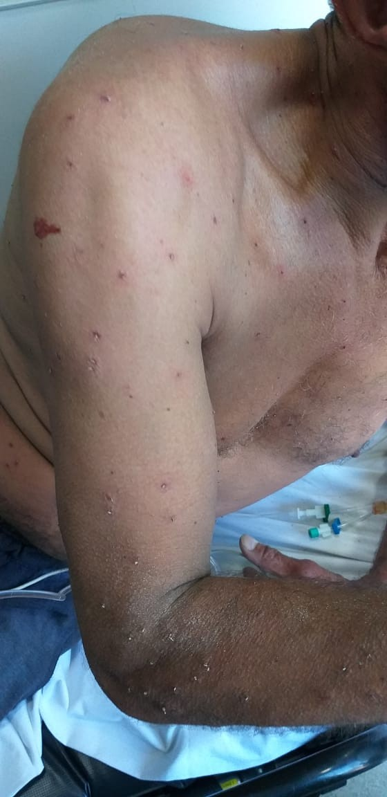 Homem leva mais de 200 picadas de abelhas na Grande Florianópolis - Noticias