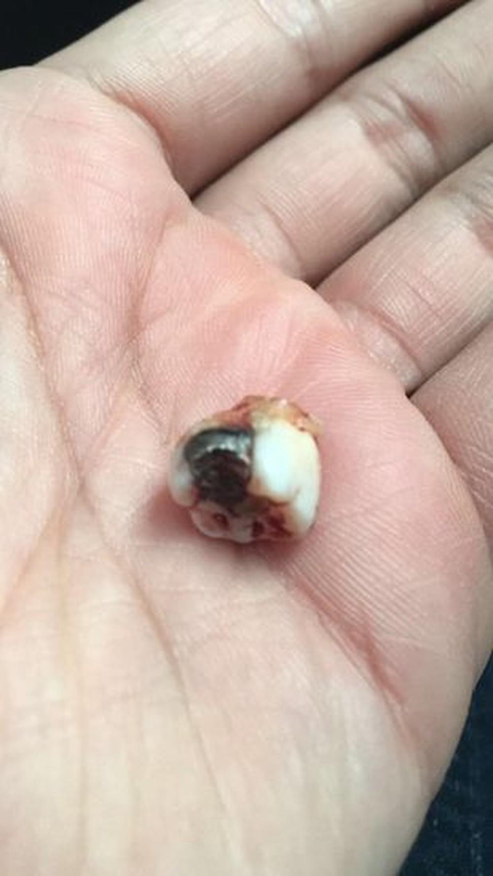 Dentista explica 'milagre' de dente que parou tiro e aponta o herói: 'Um siso' 1