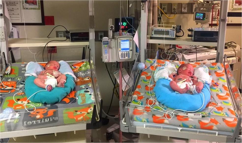 Gêmeos nasceram com um intervalo de apenas dois minutos  (Foto: Davis Hospital and Medical Center/Facebook)