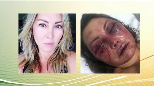 Mulher agredida no Rio tem alta; recuperação deve levar 6 meses