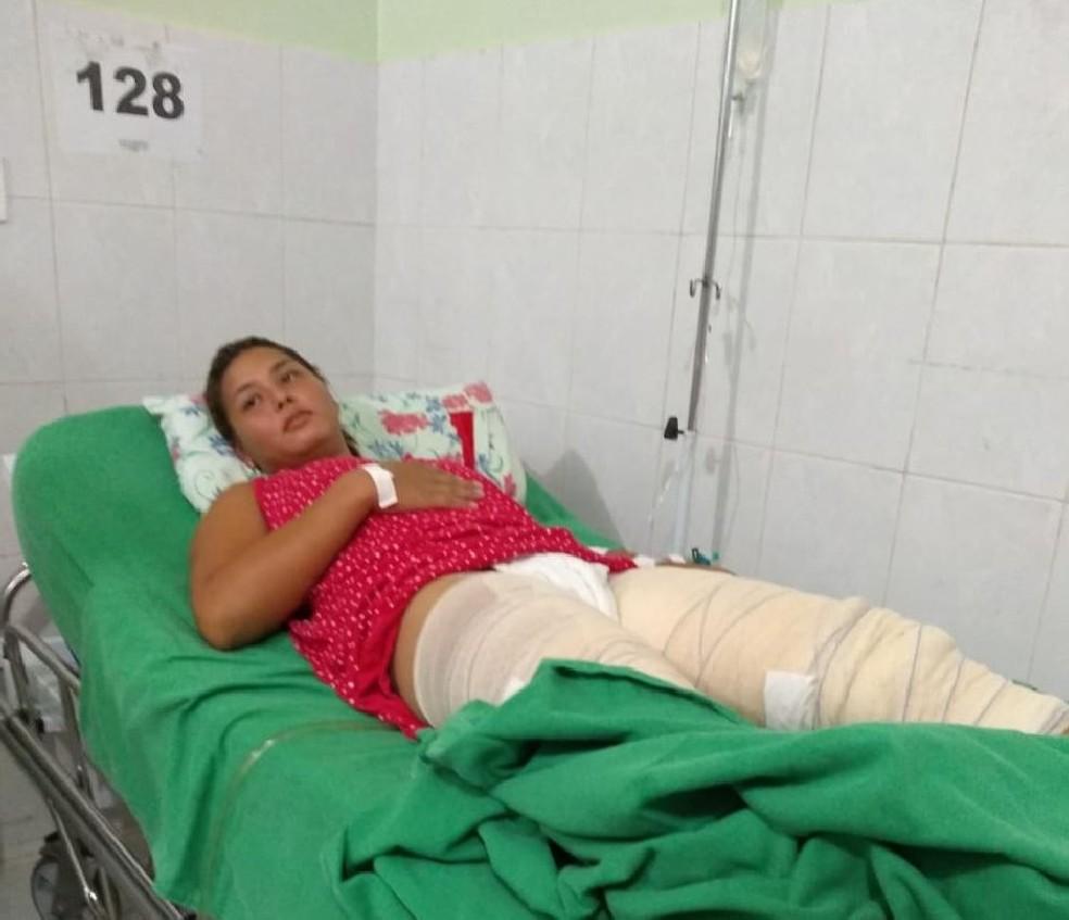 Mulher está internada com queimaduras de terceiro grau e sem previsão de alta médica — Foto: Arquivo pessoal