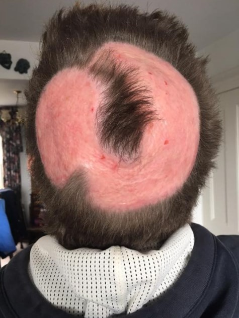 Reação ao uso de tintura para cabelo: queimadura e perda de parte do couro cabeludo