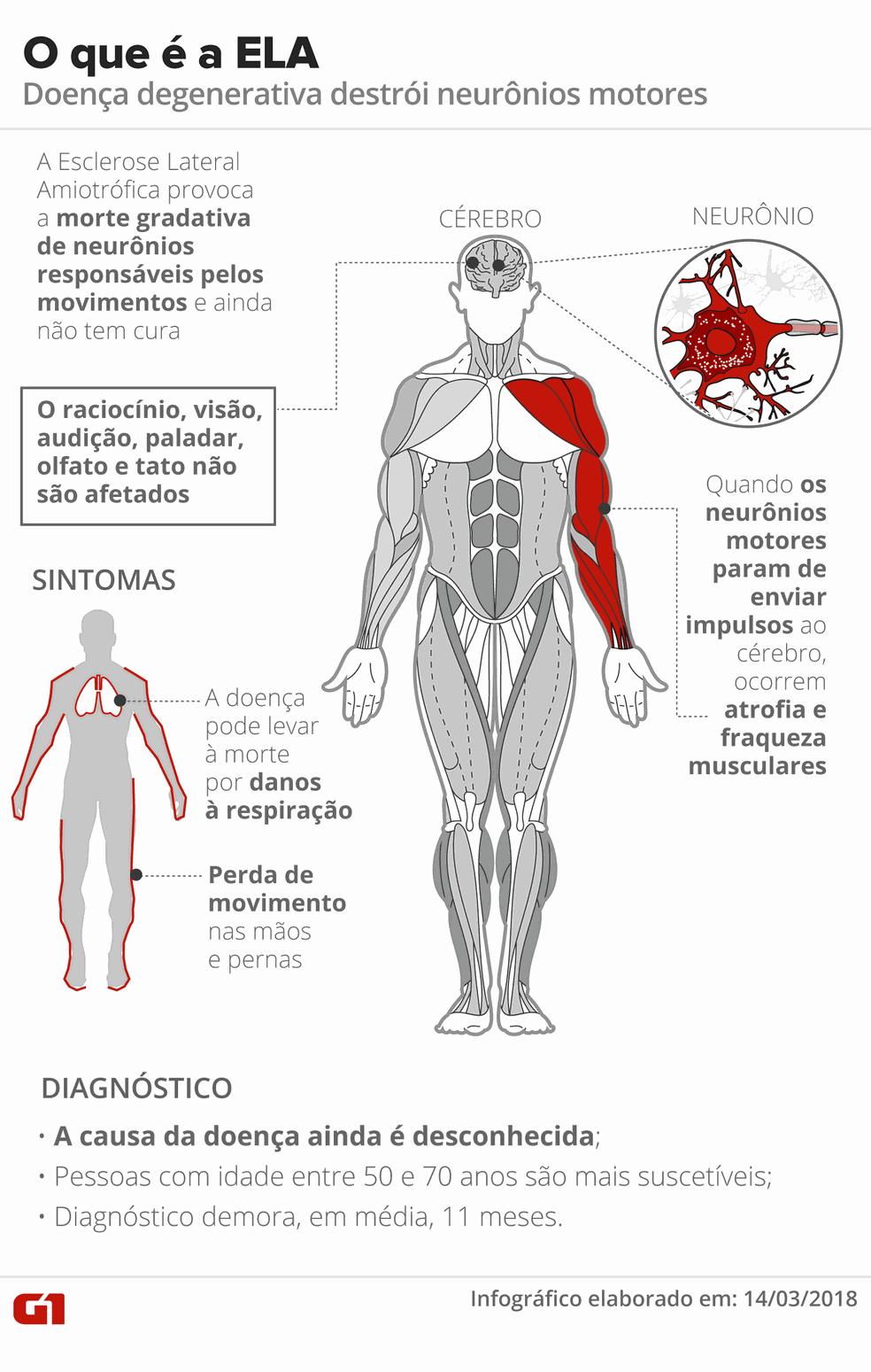 Esclerose Lateral Amiotrófica (Foto: Infografia: Karina Almeida/G1)