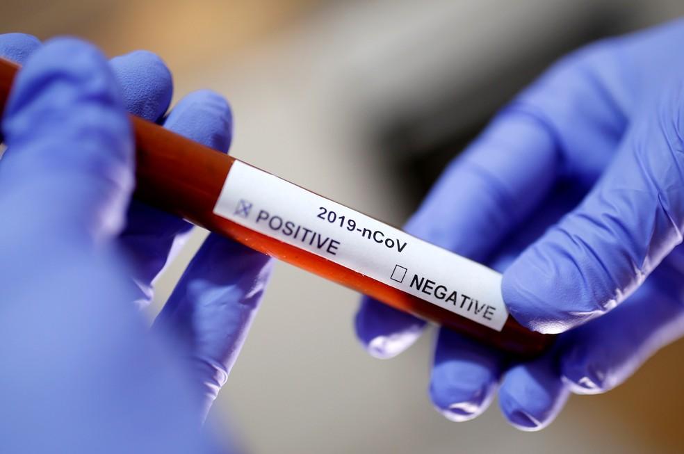 Sobe para 16 o número de casos confirmados de coronavírus em São ...