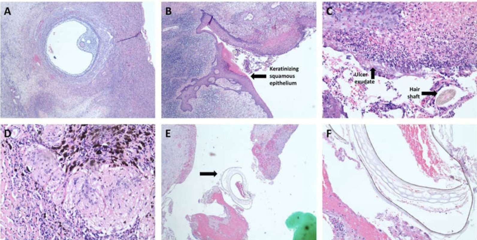 Cisto (Foto: Journal of Clinical and Diagnostic Research)