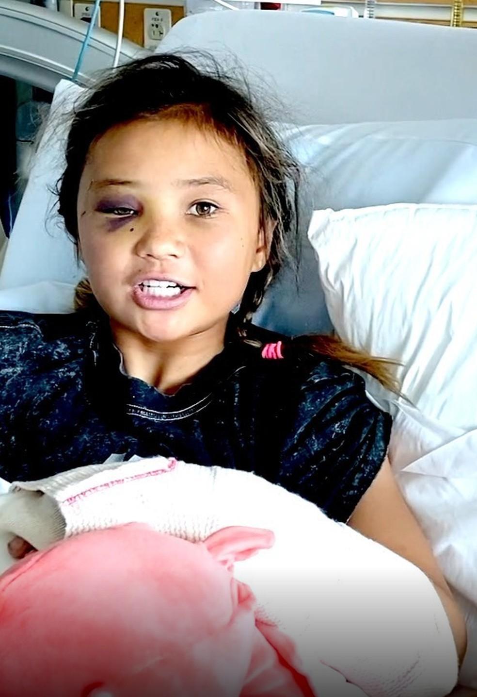Skatista Sky Brown sofre acidente de skate ao cair de uma altura de 4 metros no halfpipe — Foto: Reprodução/redes sociais
