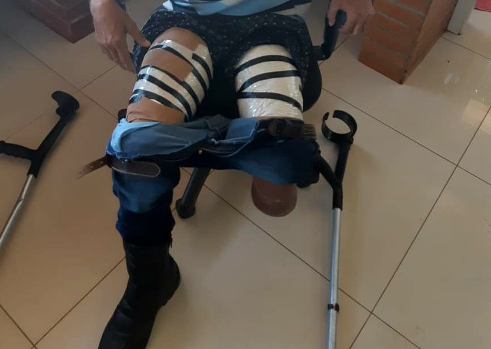 O homem disse ainda que os pacotes com a droga em pó foram atados às pernas dele por uma mulher, que não disse que tipo de entorpecente ele estava levando — Foto: PRF/Divulgação