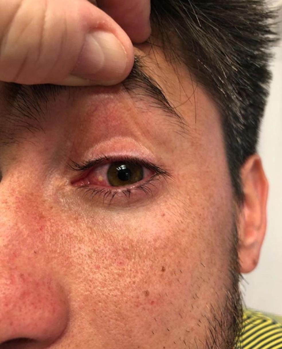 Detalhe do olho esquerdo de Pablo Pérez  — Foto: Reprodução