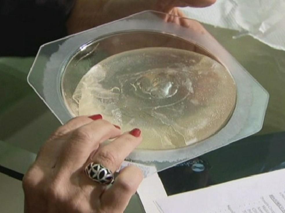 Próteses de silicone: Busca pelo corpo perfeito banalizou a cirurgia plástica no Brasil. (Foto: Reprodução Globo News)