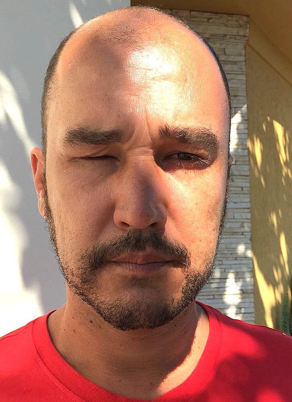 Adriano Domiciniano ficou com a visão comprometida (Foto: Arquivo pessoal)