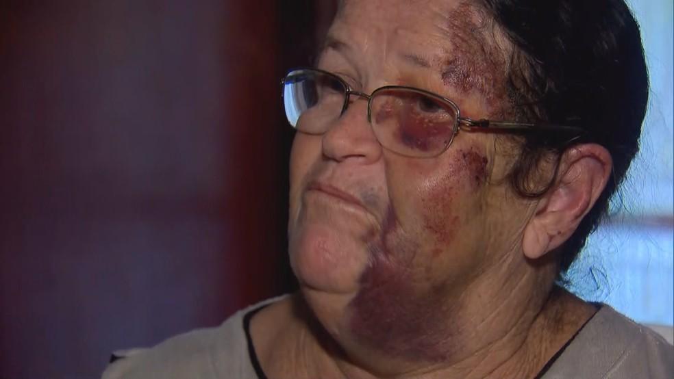 A vendedora de balões Marina Izidoro de Morais ficou com diversos hematomas pelo corpo após ser arrastada por carro no Distrito Federal — Foto: TV Globo/Reprodução