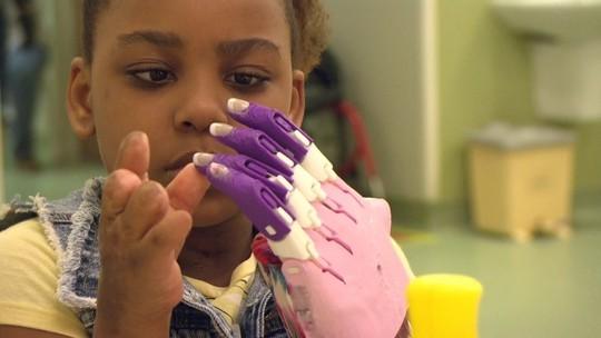 Projetos no RJ ajudam crianças amputadas a viver melhor