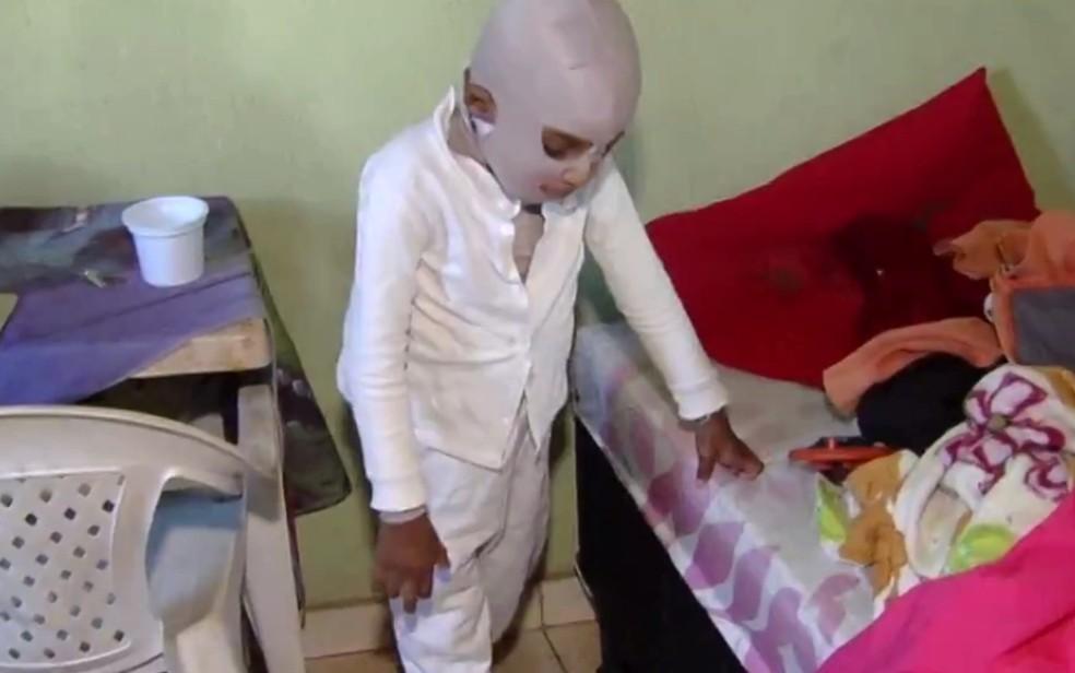 Ezequiel se queimou durante brincadeira e precisa de ajuda para tratamento em Goianira, Goiás — Foto: Reprodução/ TV Anhanguera