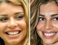 Antes e depois das lentes de contato dental em Grazi Massafera