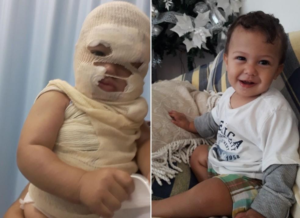 Menino Lorenzo se acidentou durante as férias da família em Itanhaém, SP (Foto: Arquivo Pessoal)