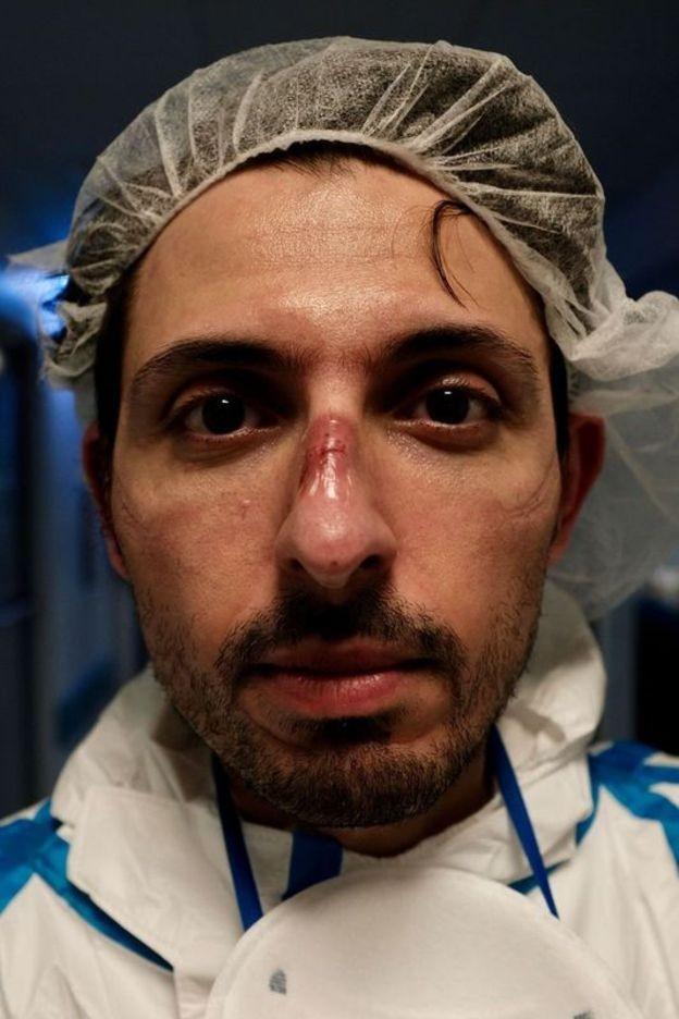 Enfermeiros e médicos italianos reclamam de esquecimento após auge da pandemia de Covid-19