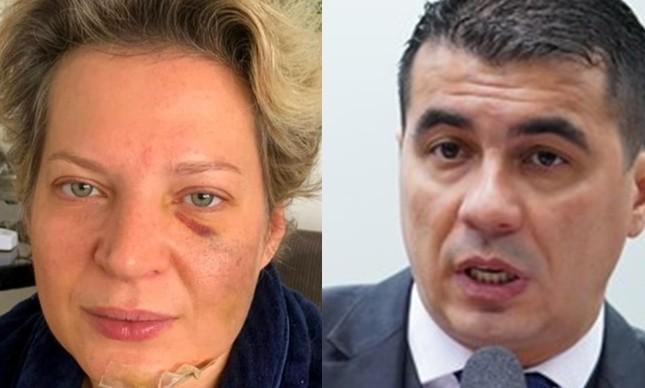 Joice Hasselmann, após a agressão que sofreu, e Luís Miranda