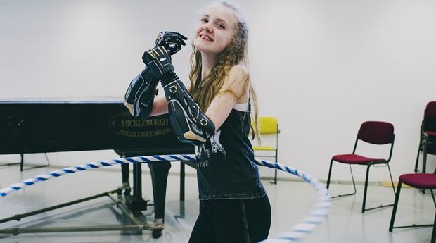 Open Bionics: empresa produz próteses para crianças  (Foto: Divulgação)