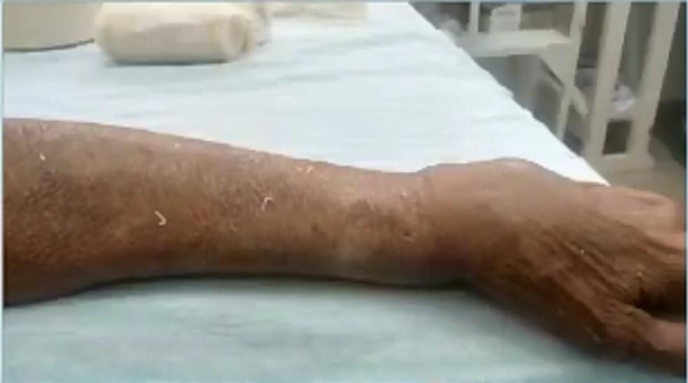 Idosa ficou com um dos braços quebrado — Foto: Reprodução