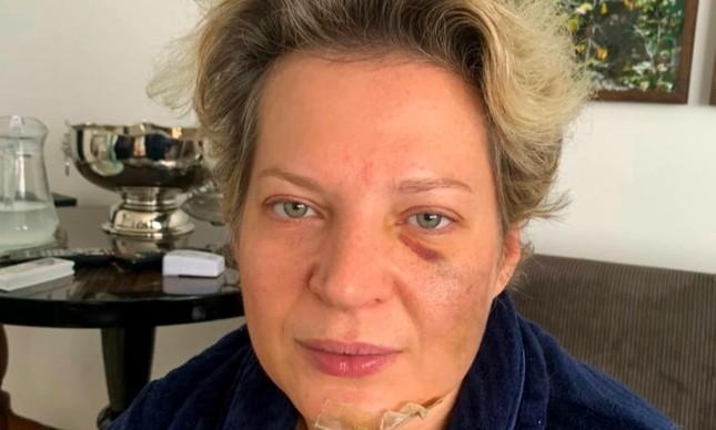 A deputada Joice Hasselmann está com cinco fraturas no rosto e uma na coluna