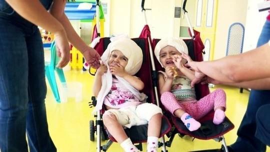 Gêmeas siamesas separadas em operação rara comemoram três anos