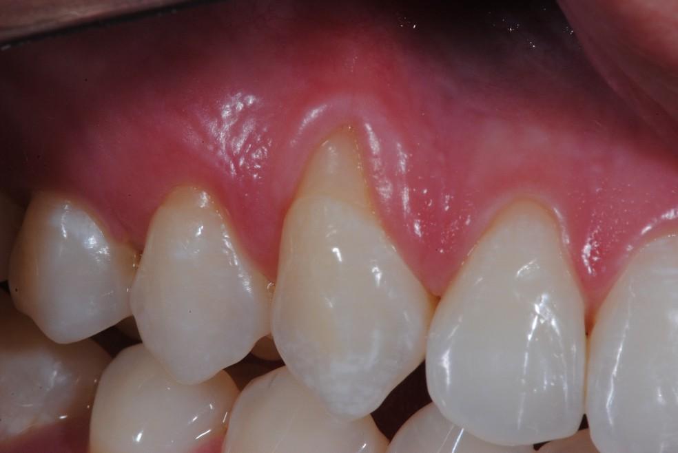 Caso de paciente com retração gengival apresentando também alto nível de hipersensibilidade dentinária (Foto: Acervo Grupo LCNC/FO.UFU-MG)