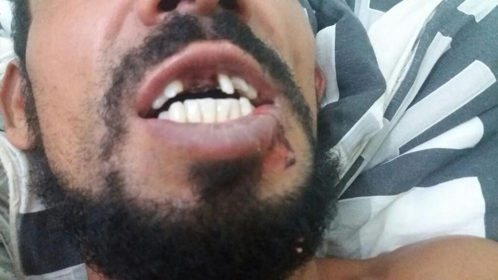 Vítima de acidente perdeu os dentes após ser atropelado em Peruíbe, SP. (Foto: Nina Barbosa/G1)