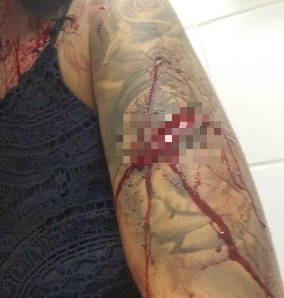 Modelo teve corte no braço durante briga em Itanhaém (SP) — Foto: Arquivo Pessoal