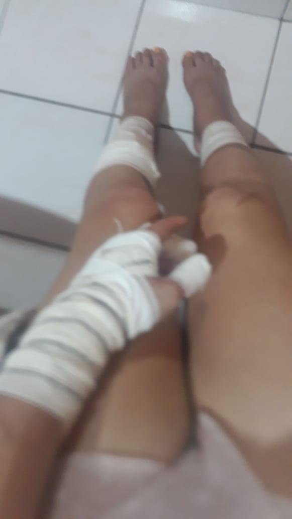 Rebeka Curtts sofreu ataque no fim de semana  (Foto: Arquivo Pessoal)
