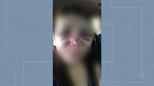 Ex é suspeito de agredir e desfigurar rosto de copeira por não aceitar término, em Uruaçu