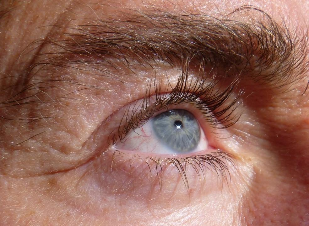 Nos casos de herpes zóster oftálmica, estruturas atrás da córnea podem inflamar e a pressão intraocular aumentar — Foto: https://commons.wikimedia.org/w/index.php?curid=26526221