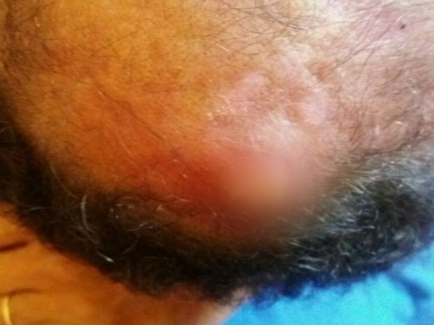 Família acusa hospital de ter deixado gaze na cabeça de paciente em Itumbiara Goiás (Foto: Reprodução/TV Anhanguera)