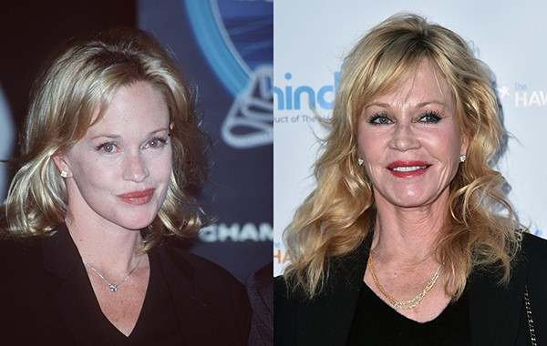 Melanie Griffith em 1998 e em 2016 (Foto: Getty Images)