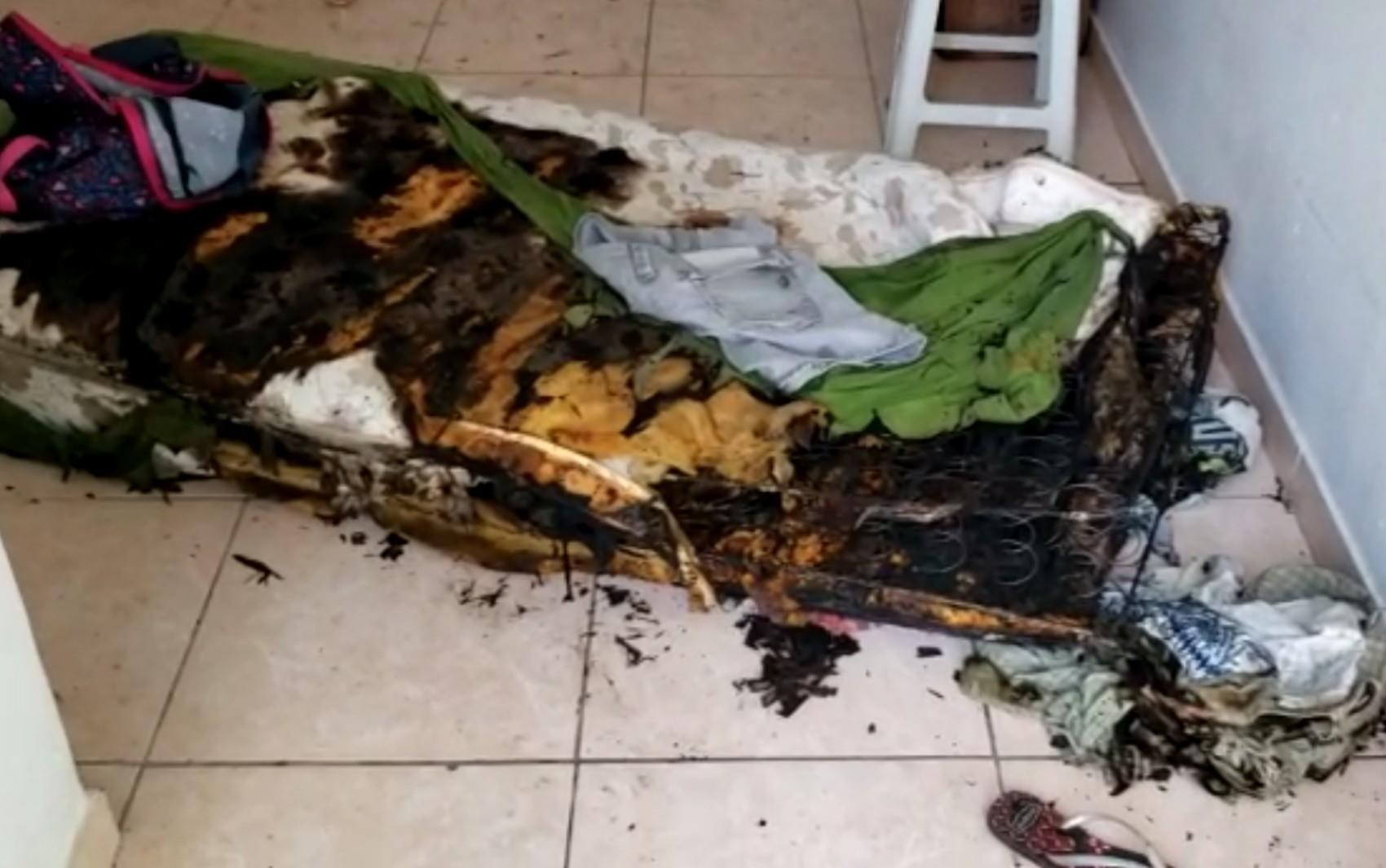 Mulher tem 60% do corpo queimado por companheira durante briga por ciúmes, diz polícia