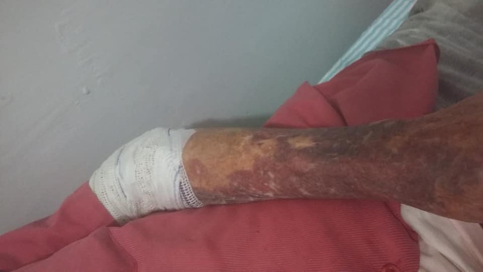 Idoso teve ferimentos no rosto e nos braços (Foto: Regiane Nizer Dos Santos/Arquivo pessoal)