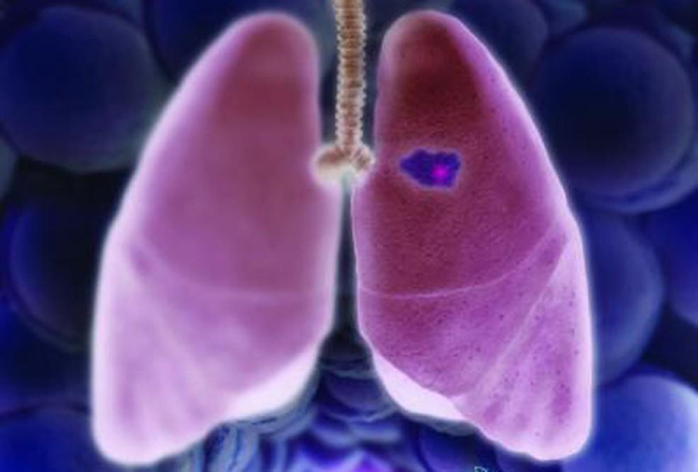 Câncer de pulmão pode ficar escondido por 20 anos — Foto:  Eric D. Smith, Dana-Farber Cancer Institute/Divulgação