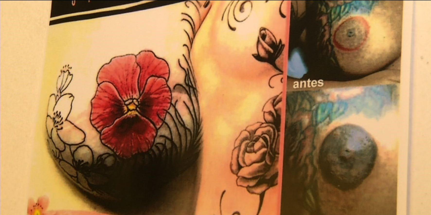 Projeto oferece tatuagens gratuitas para mulheres que fizeram mastectomia em Resende - Notícias - Plantão Diário