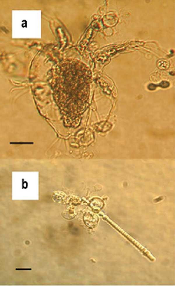 Fungo Batrachochytrium dendrobatidis, responsável por ameaçar a população mundial de anfíbios (Foto: Wikipedia Commons)