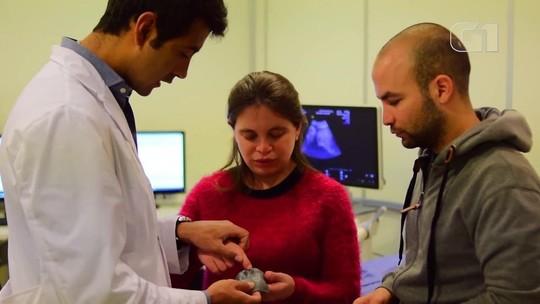Impressora 3D ajuda pais cegos a 'verem' ultrassom de bebê na gravidez