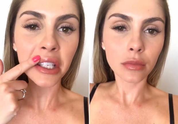 Bárbara Evans exibindo resultado de micropigmentação (Foto: Reprodução/Instagram)