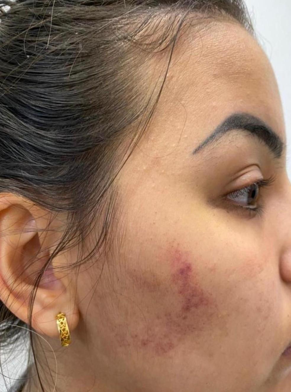 Jovem ficou com o rosto machucado após agressão — Foto: Arquivo Pessoal
