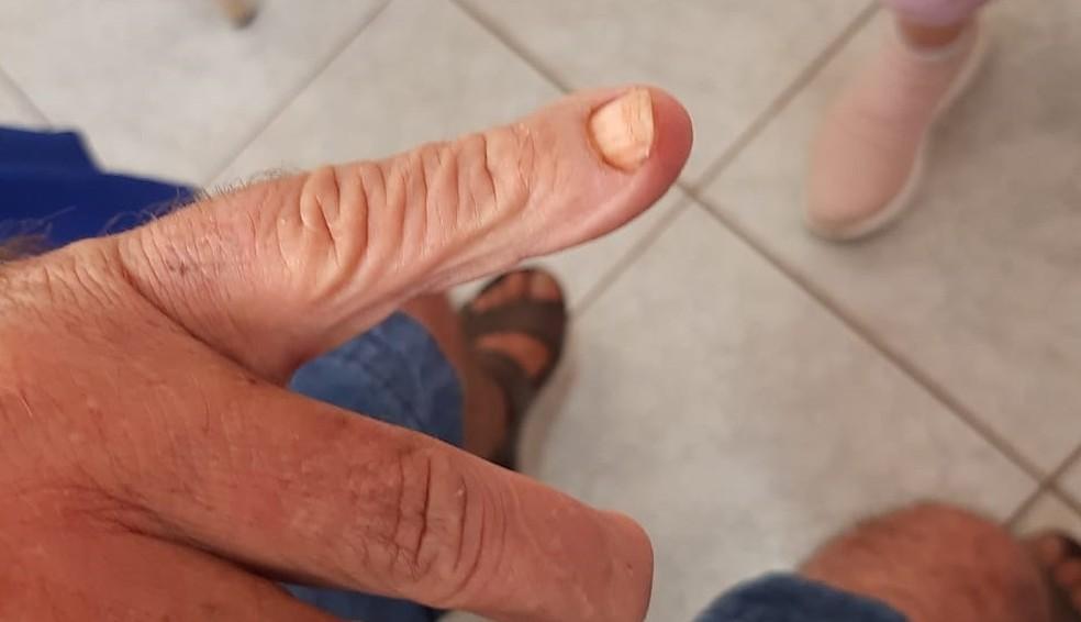 Idoso torturado em clínica de reabilitação de Sales de Oliveira (SP) teve dedos apertados com alicate — Foto: Divulgação / Polícia Civil