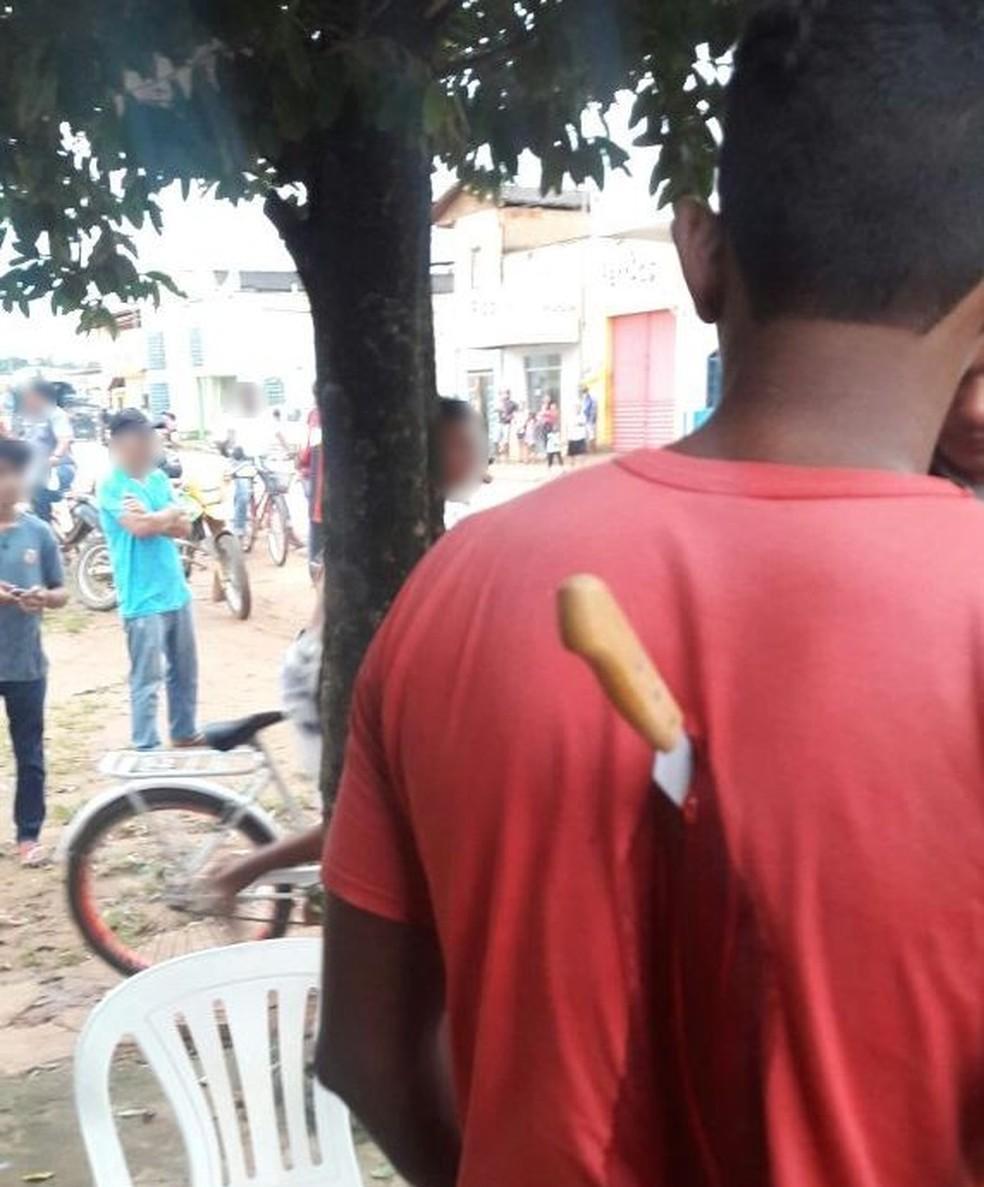 Jovem ficou com faca cravada nas costas após briga em Brasileia (Foto: Reprodução/Reprodução/WhatsApp)
