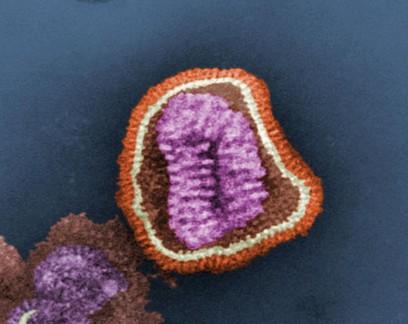 H1N2: entenda o que é o novo vírus da gripe detectado no Paraná
