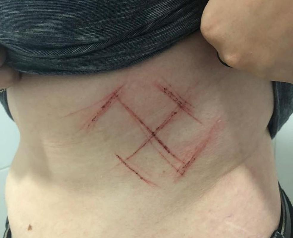 Suspeitos teriam marcado a barriga da jovem com canivete — Foto: Arquivo pessoal