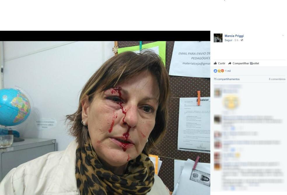 Professora postou fotos da agressão no Facebook (Foto: Reprodução/Facebook)