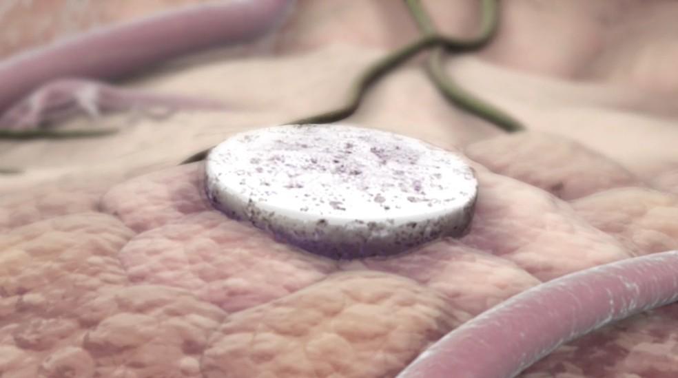 Vacina do tamanho de uma aspirina é colocada perto do local do tumor — Foto: Reprodução / Universidade de Harvard